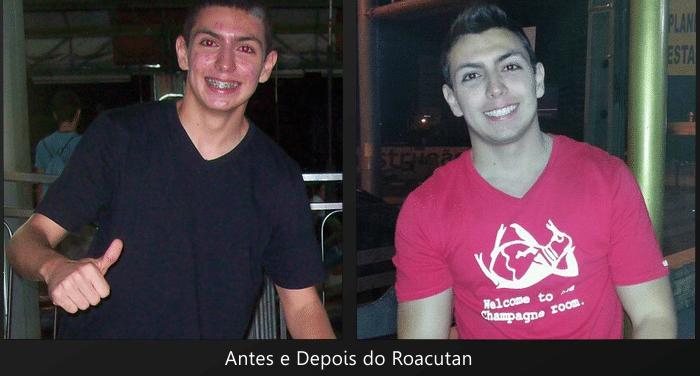 Antes e depois do roacutan (isotretinoína)