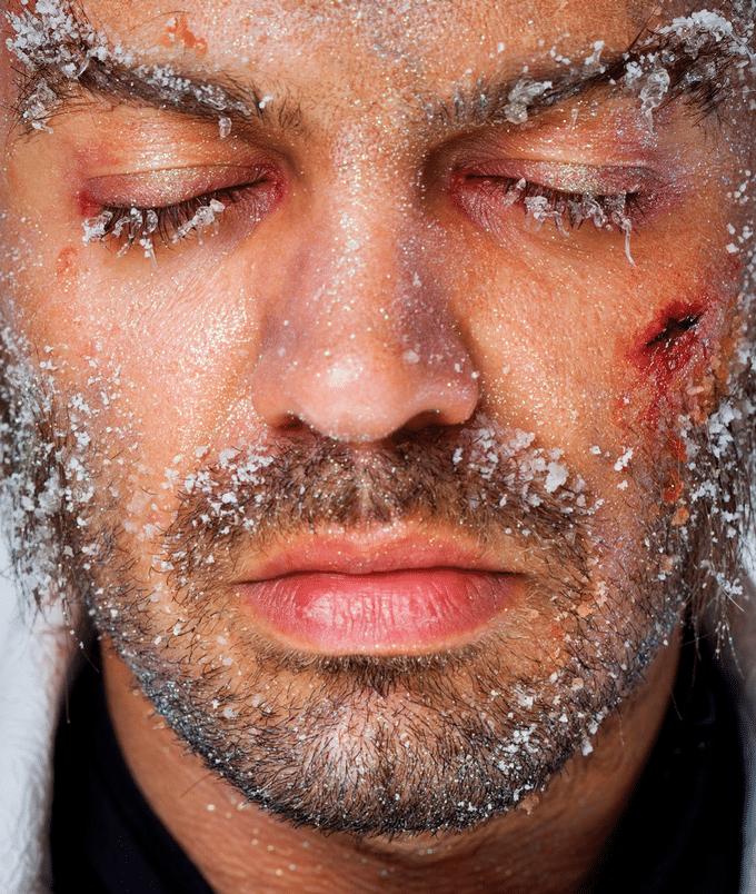 Cuidados com a pele masculina no inverno