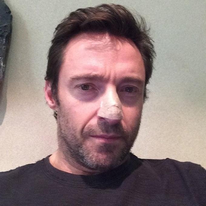 Hugh Jackman Cãncer de pele - HQSC