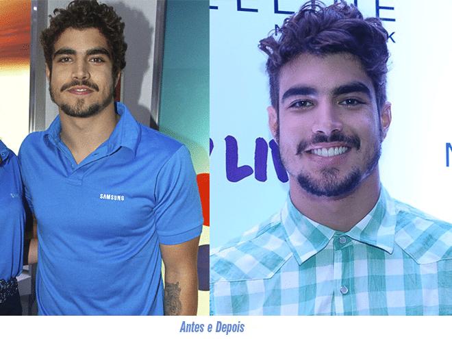 Antes e Depois Corte Caio Castro - HQSC