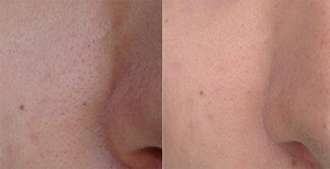 Antes e Depois Pore Minimizer Clinique HQSC 1
