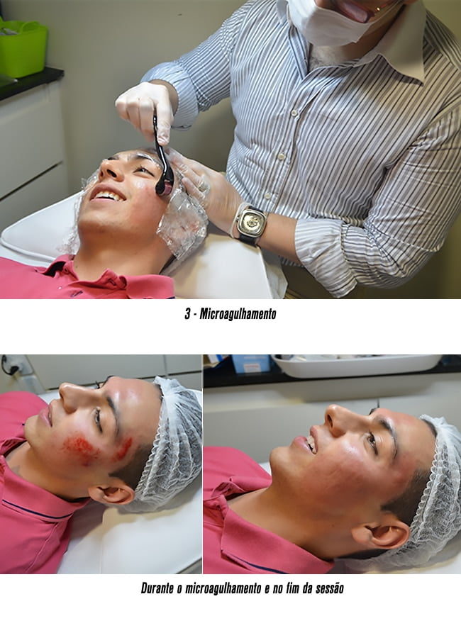 Microagulhamento para marcas de acne HQSC 22