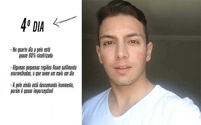 Microagulhamento-para-marcas-de-acne-Homens que se cuidam- Juan Alves Recuperação após sessão  4