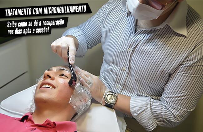 Microagulhamento-para-marcas-de-acne-Homens que se cuidam- Juan Alves Recuperação após sessão