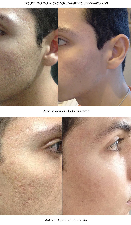 Antes e depois após microagulhamento ou dermaroller Juan Alves Final