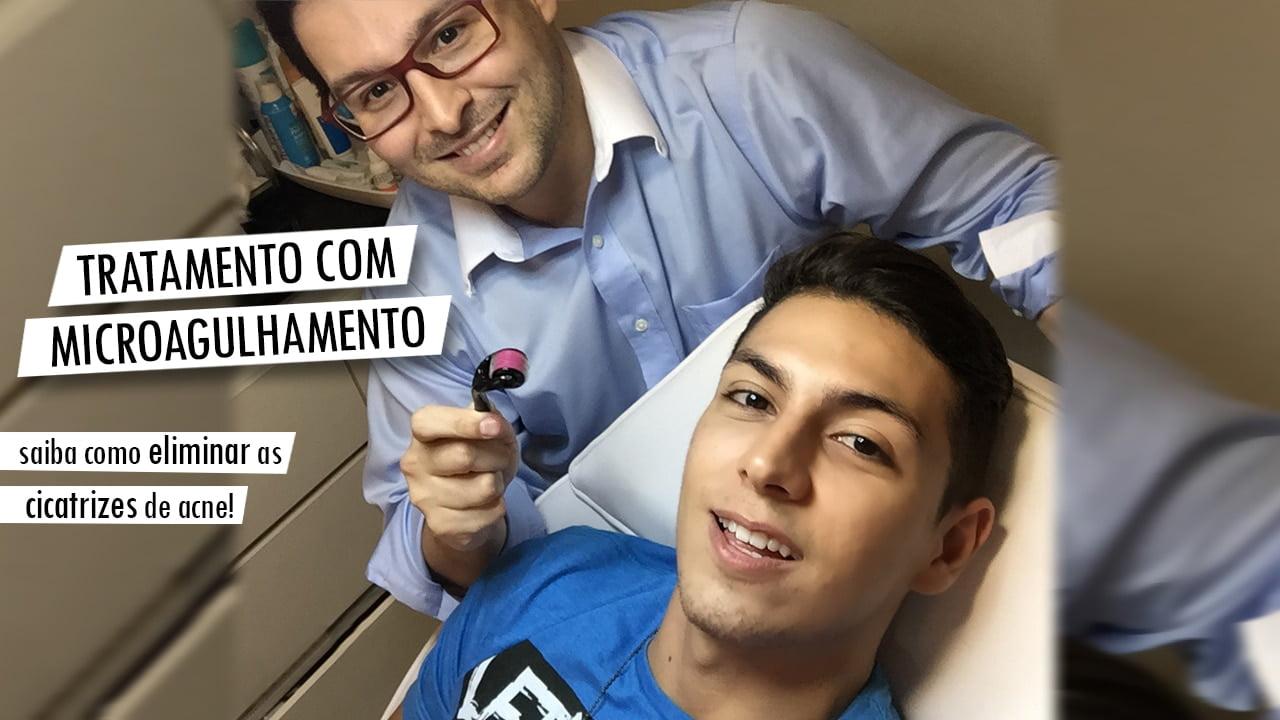 Capa tratamento com microagulhamento antes e depois Juan Alves Homens que se cuidam FINAL