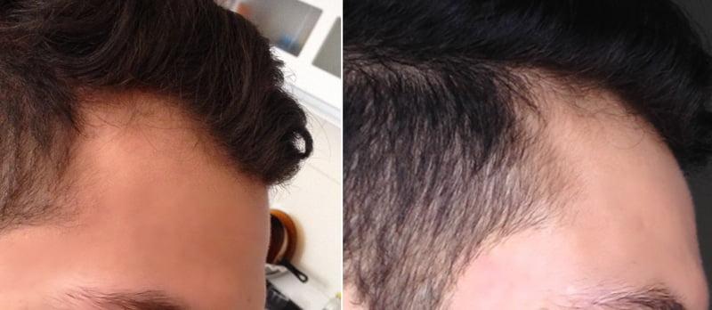 Antes e depois do minoxdil lado direito