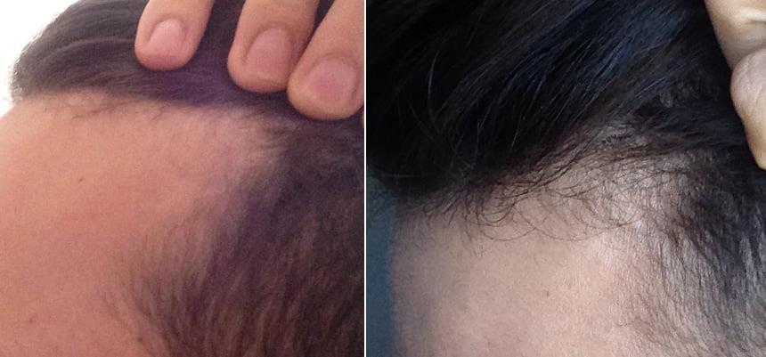 Antes e depois do minoxdil lado esquerdo
