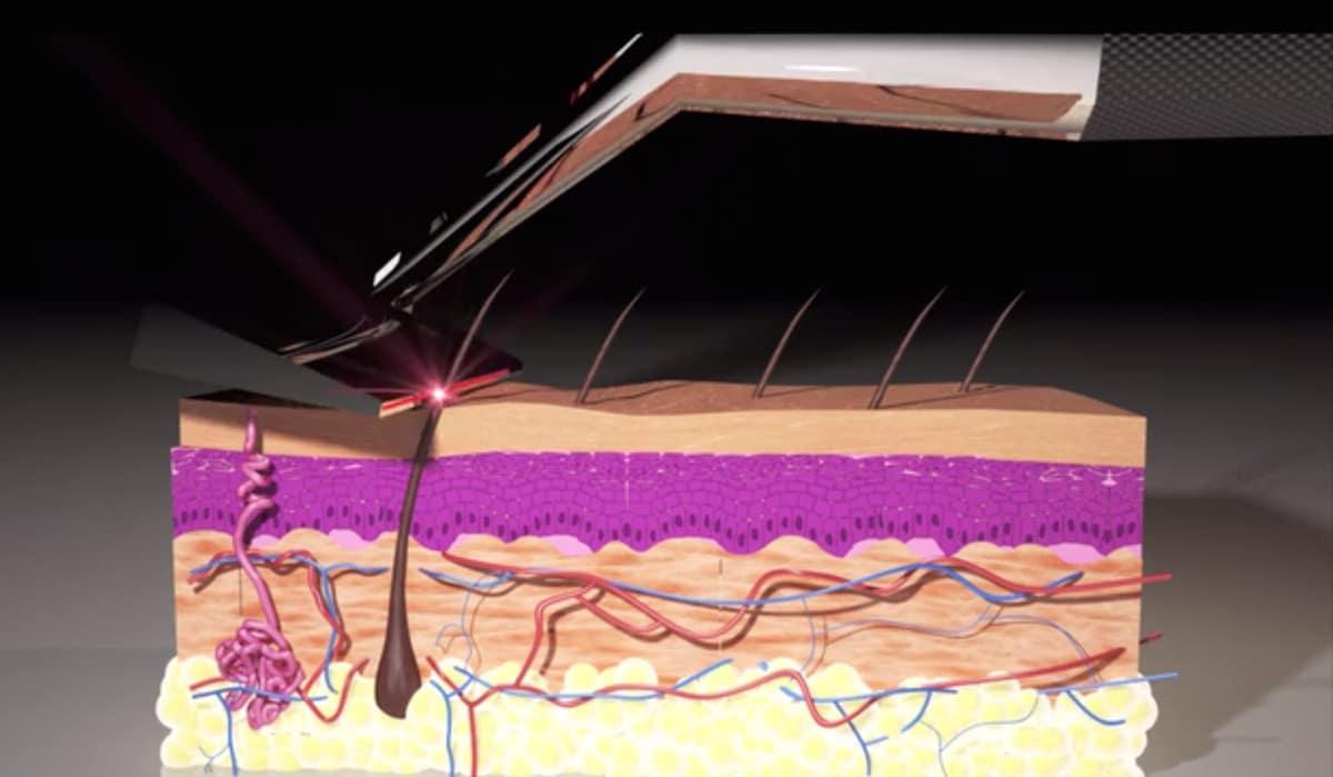 Lâmina de barbear a laser Skarp Laser Razor Homens que se cuidam 2