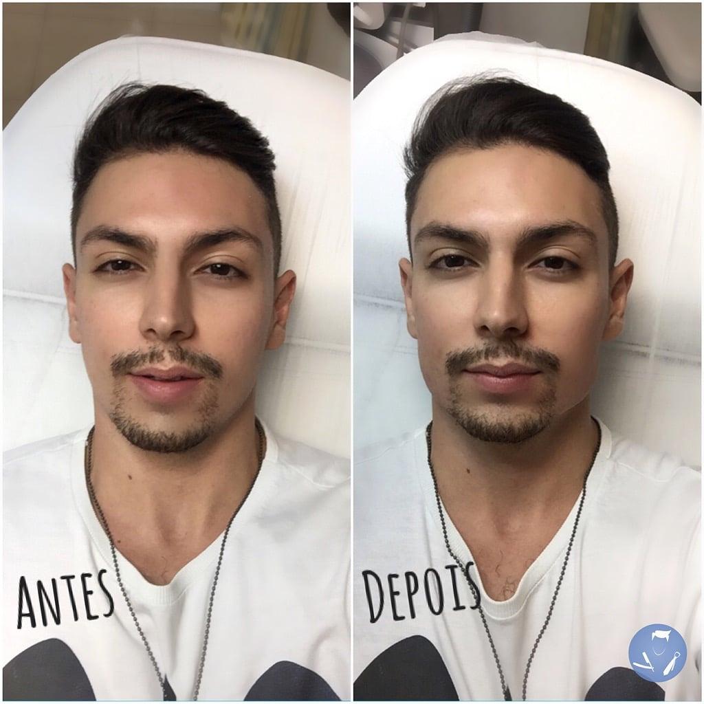 bioplastia da mandibula homens que se cuidam 1