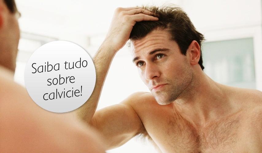 como tratar calvicie homens que se cuidam 1 1