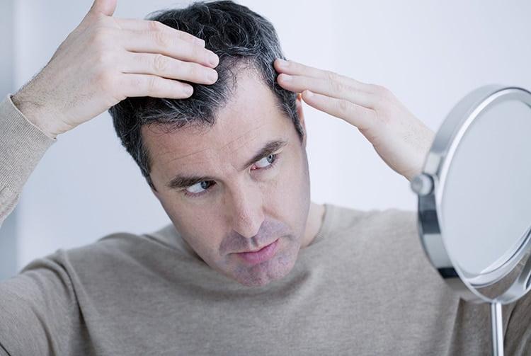 como tratar calvicie homens que se cuidam 2