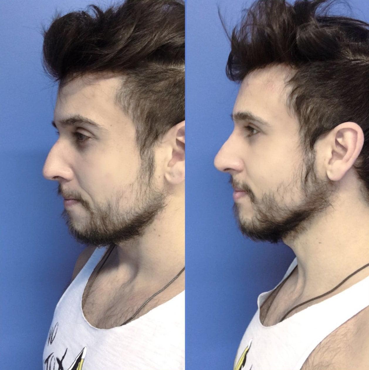 bioplastia nariz masculino geen cury para homens que se cuidam