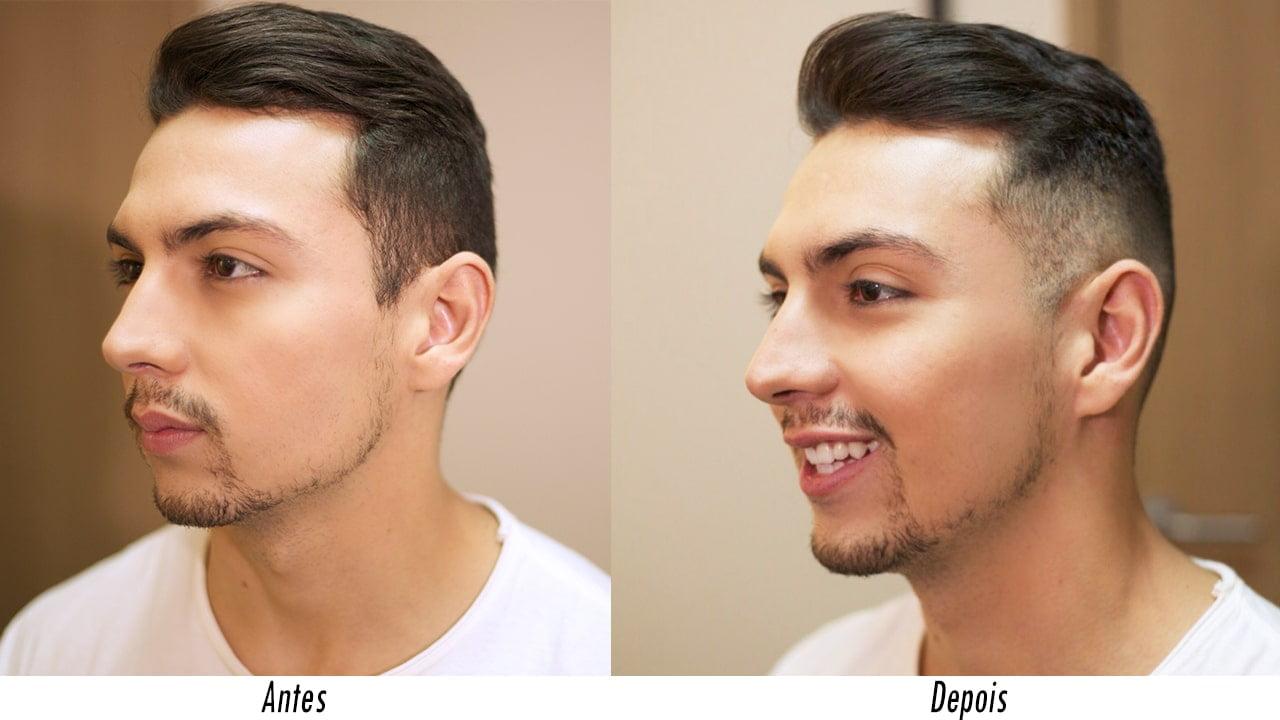 antes-e-depois-corte-de-cabelo-razor-part-juan-alves