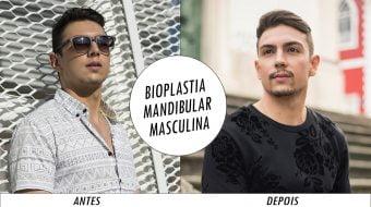 antes e depois bioplastia mandibular homens que se cuidam por juan alves CAPA
