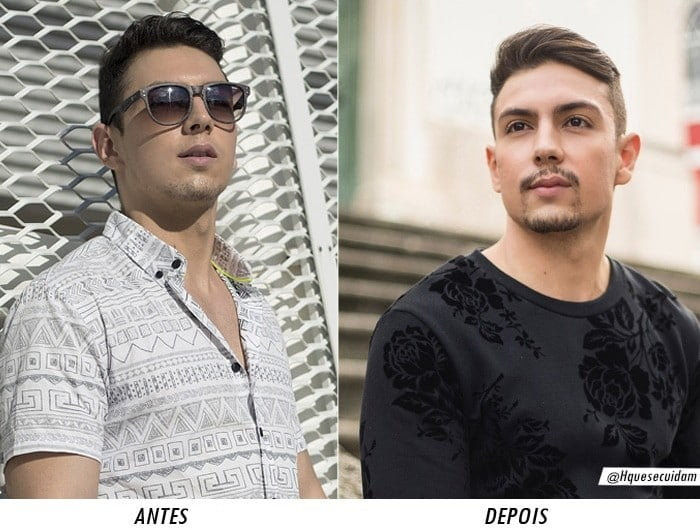 antes e depois bioplastia mandibular homens que se cuidam por juan alves