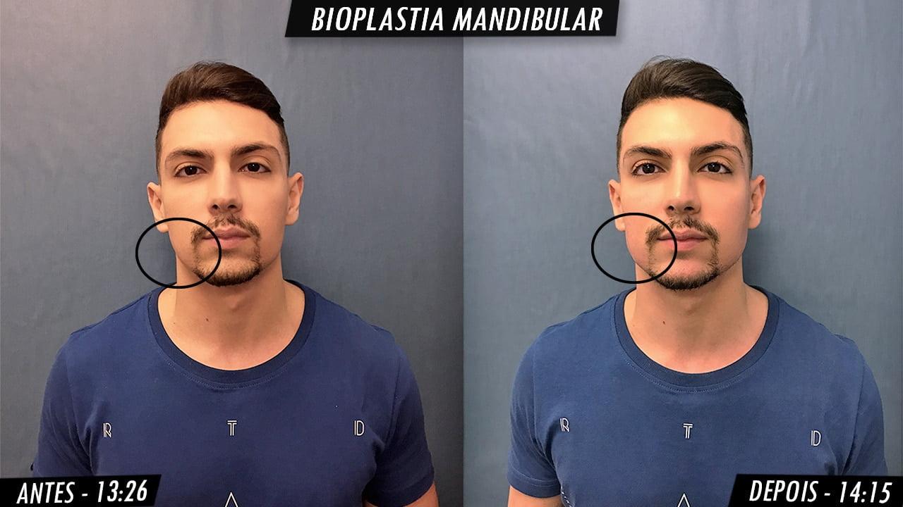 antes e depois manutencao da preenchimento mandibular masculino homens que se cuidam ptb