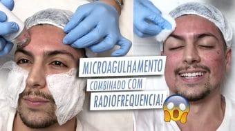 VLOG sessao de microagulhamento com radiofrequência (para cicatriz de acne) homens que se cuidam por juan alves capa FINAL MESMO
