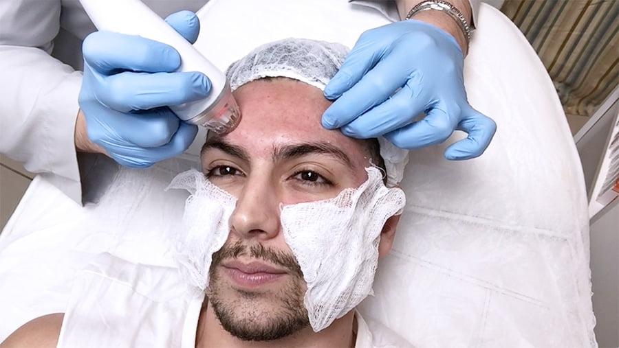 a VLOG sessao de microagulhamento com radiofrequência (para cicatriz de acne) homens que se cuidam por juan alves capa