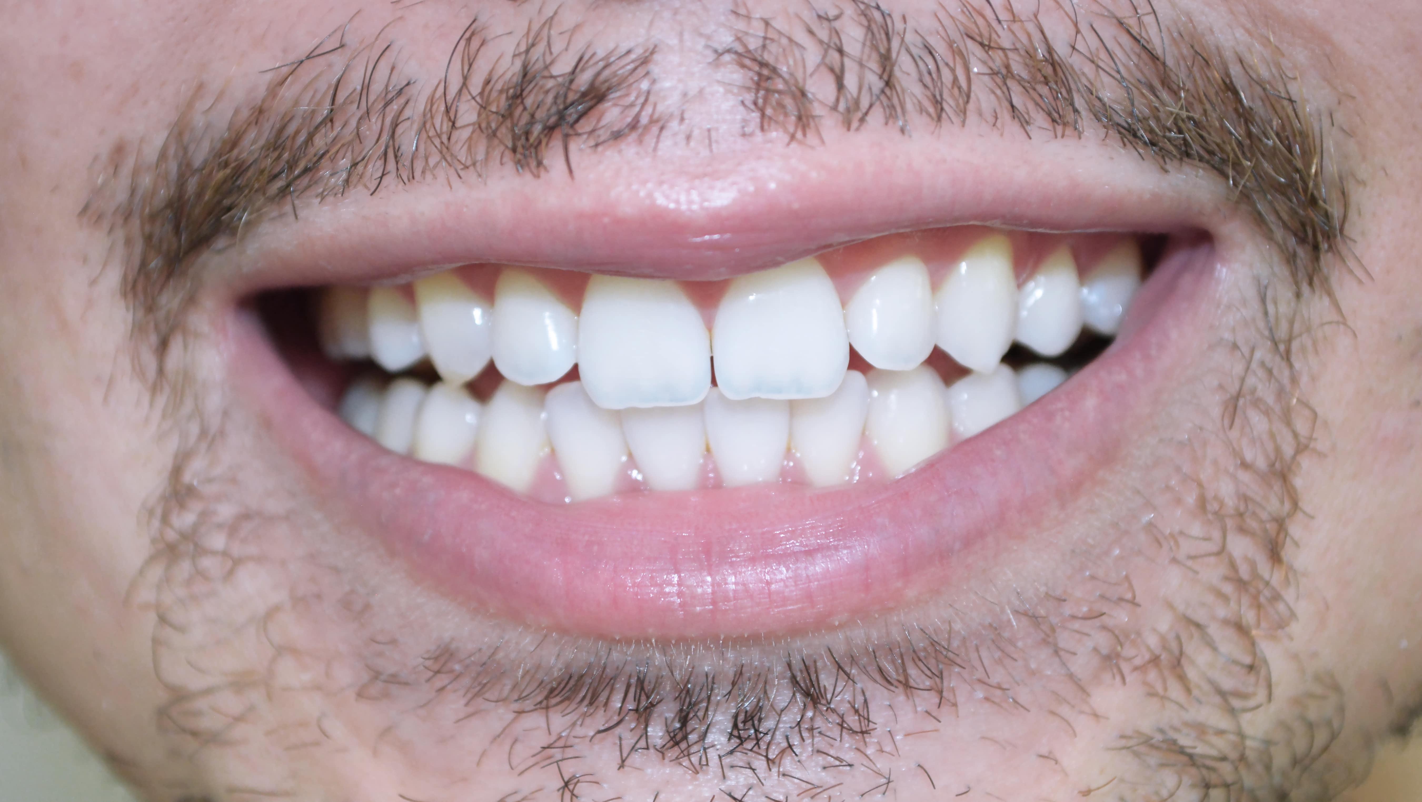 Pasta De Dente Preta Que Clareia Os Dentes Se Liga Homens Que Se