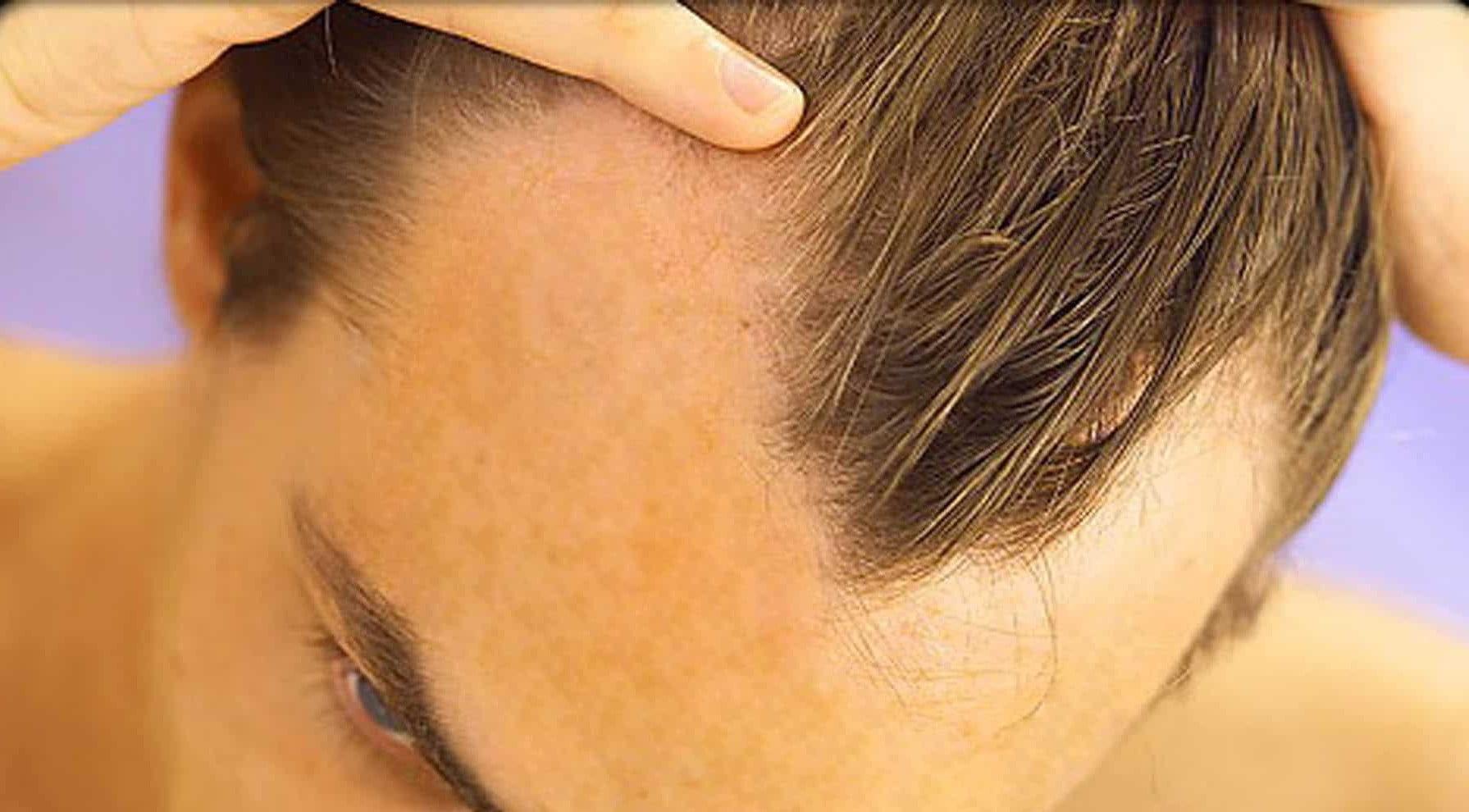 transplante capilar masculino homens que se cuidam por juan alves a