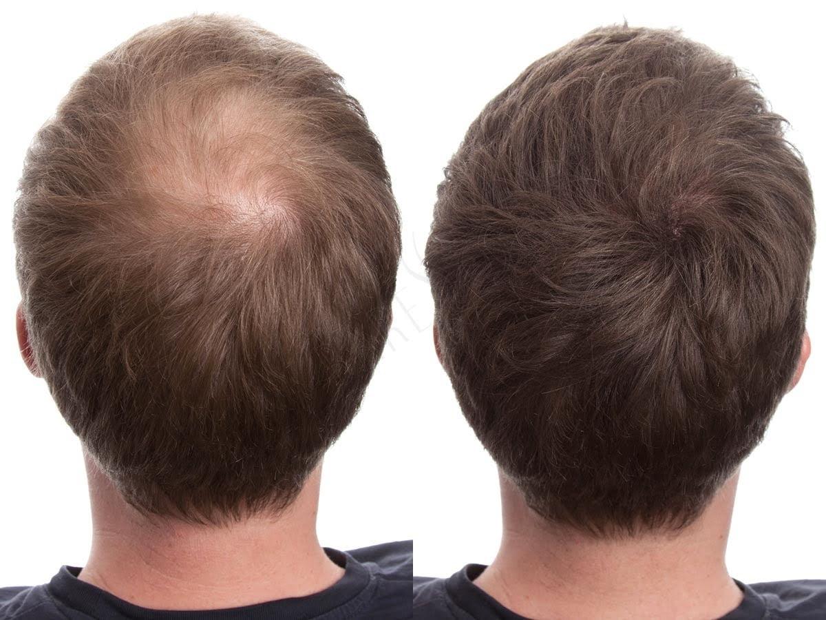 transplante capilar masculino homens que se cuidam por juan alves c