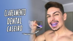 capa clareamento dental caseiro homens que se cuidam