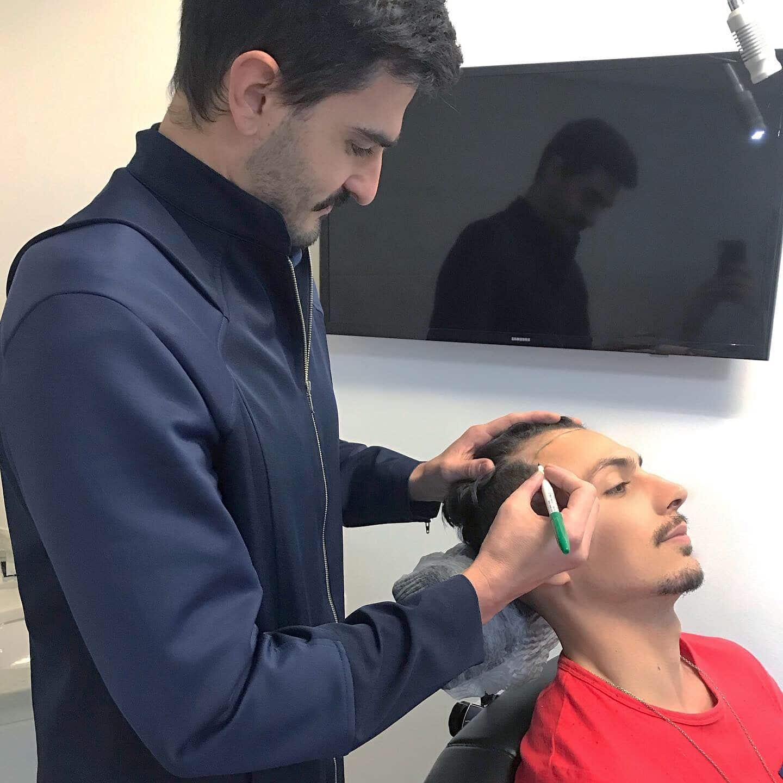 transplante capilar masculina tecnica fue juan alves do homens que se cuidam c