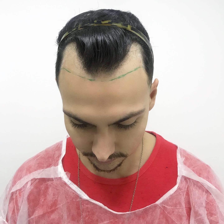 transplante capilar masculina tecnica fue juan alves do homens que se cuidam d