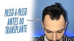 pré-operatório doTRANSPLANTE CAPILAR MASCULINO POR JUAN ALVES