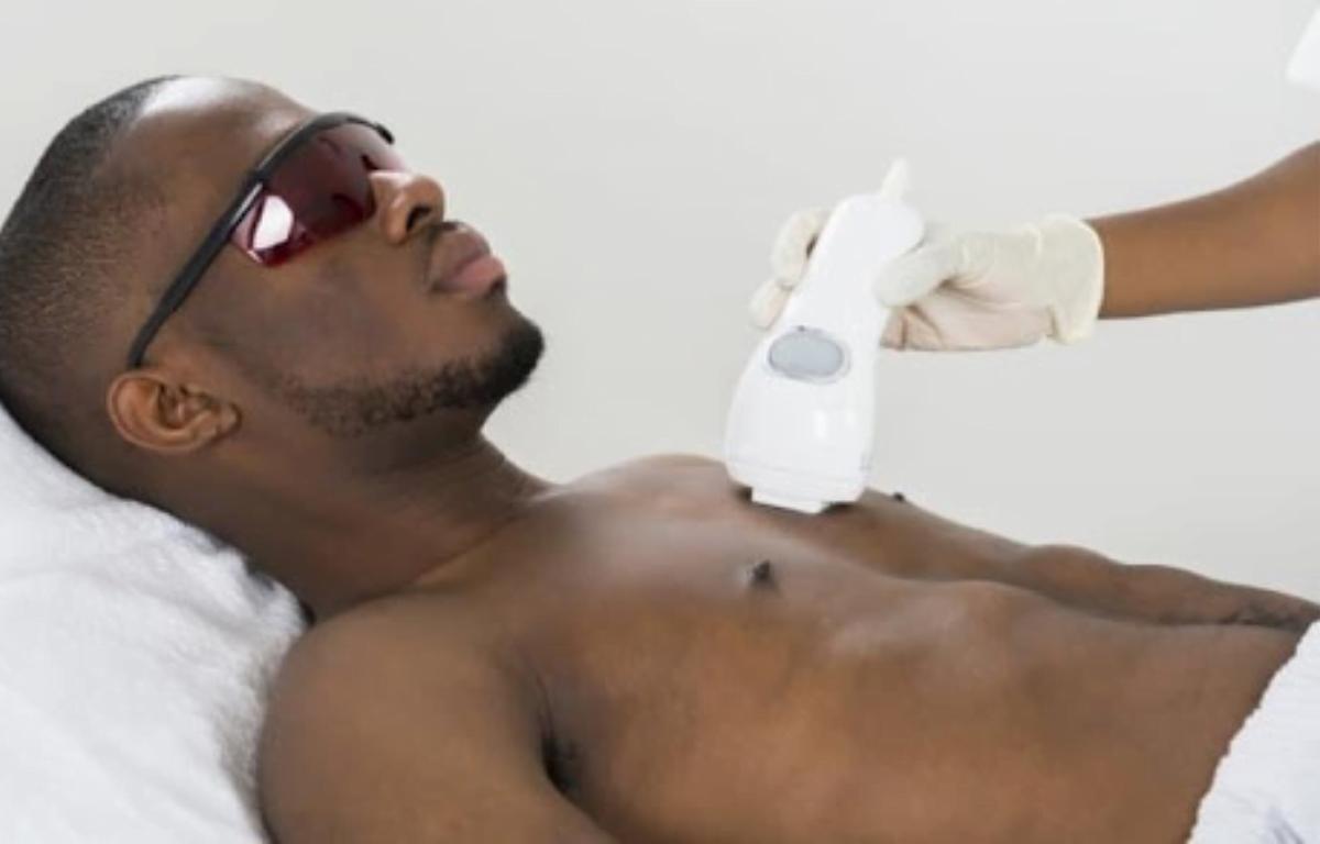 depilação a laser para diminuir os pelos