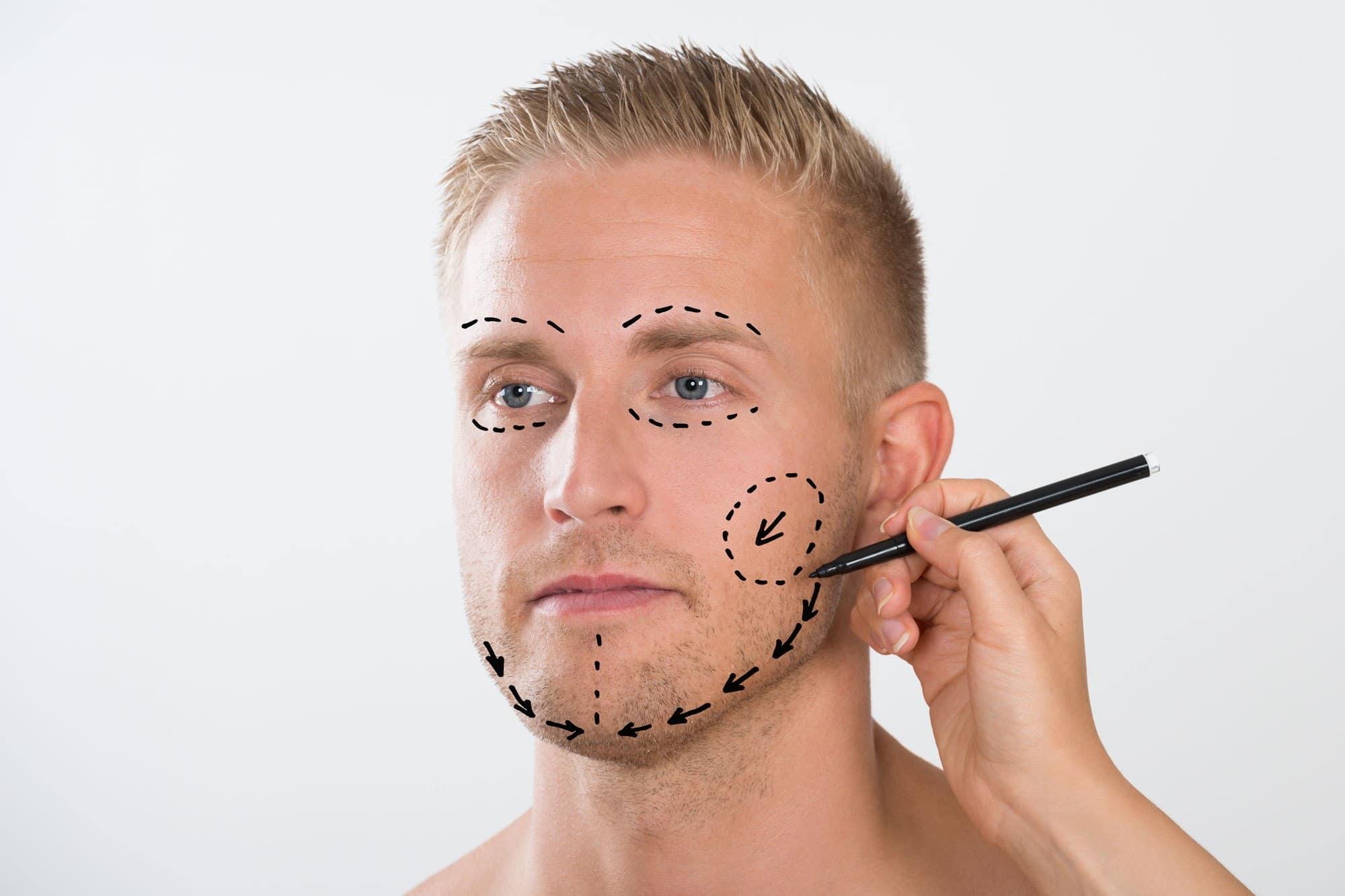 tipos de harmonização facial
