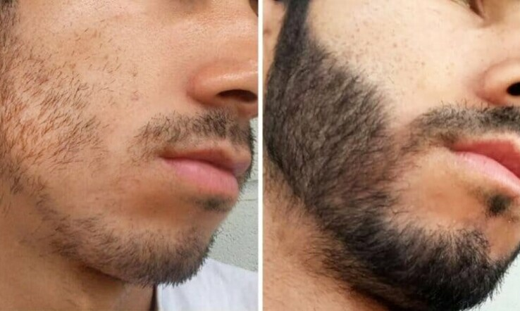 Imagem da publicação Minoxidil na barba Antes e Depois Inacreditáveis