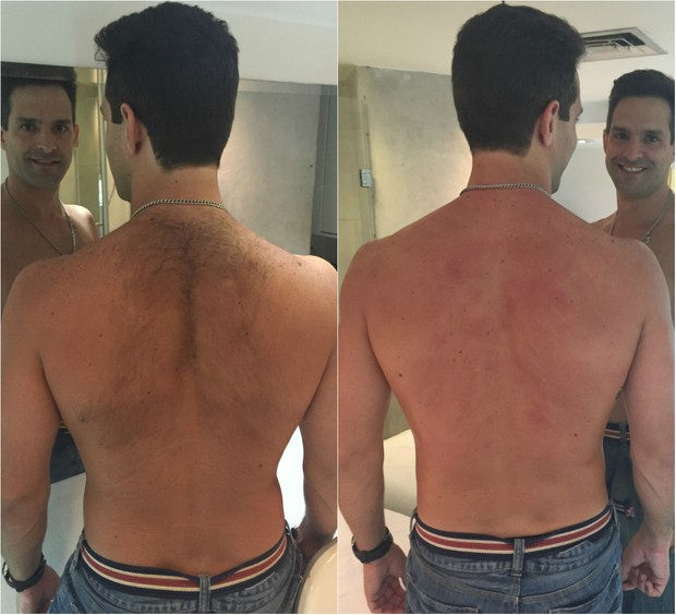 Close nas costas de um homem branco  mostrando o antes e o depois de uma depilação a laser masculina