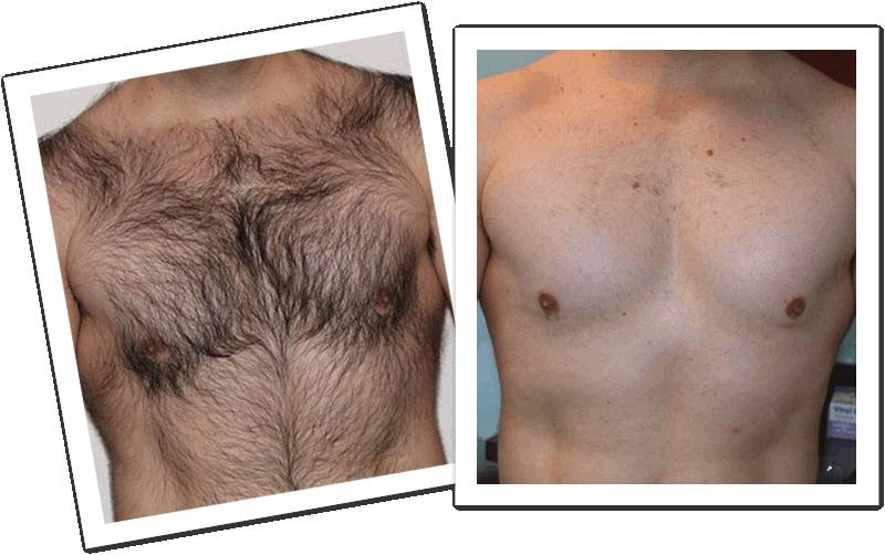 Close no peito de um homem branco mostrando o antese o depois de uma depilação a laser masculina